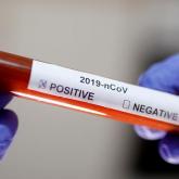 Қазақстанда коронавирус жұқтырған тағы 41 адам анықталды