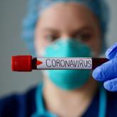 СҚО-да коронавирус жұқтырған тағы 3 адам тіркелді