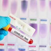 Италия ғалымдары коронавирусты бірнешеминутта анықтайтын тест ойлап тапты