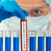 Қазақстандаөткен тәулікте тағы 100 адамкоронавирус жұқтырған