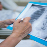 Коронавирус белгілері бар пневмониядан тағы 2 адам көз жұмды
