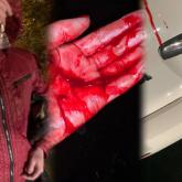 Алматыда «Яндекс» такси жүргізушісі жолаушының қолын тіліп тастаған