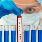 Эпидемиологтар елорда тұрғындарына үндеу жасады